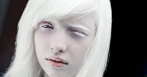 Gli albini: genetica e problemi subiti in diverse parti del mondo