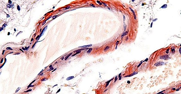 Cerebral microangiopathy: symptoms, causes and treatment